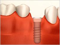 インプラント治療方法の計画 ステップ2