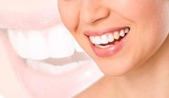 ポリリンホワイトニングで白い歯と笑顔