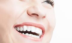 綺麗な歯を残す治療